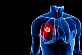 Akciğer kanserine balonlu çözüm